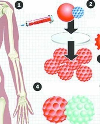 遗传病治疗_哪些疾病可以进行基因治疗-现在什么病能用基因疗法治好!?