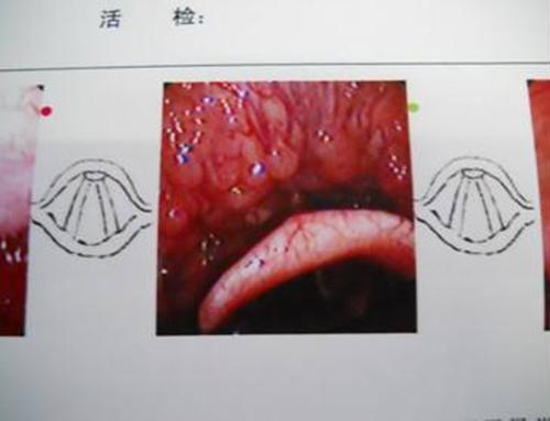 扁桃體結石多發生于扁桃體上隱窩中,如此處長期阻塞,分泌物引流不暢圖片
